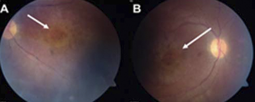 Diseased areas of the retinas of a patient with LCA16.